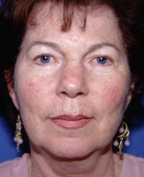 Facelift and Eyelid Surgery before 316338