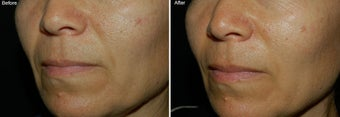 Fillers for Nasolabial Folds  before 97882
