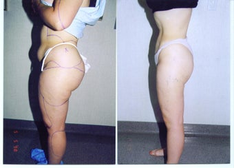 Liposuction Abdomen, Hips, Buttocks and Thighs before 55479