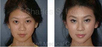 Blepharoplasty, Rhinoplasty and Chin Augmentation before 426944