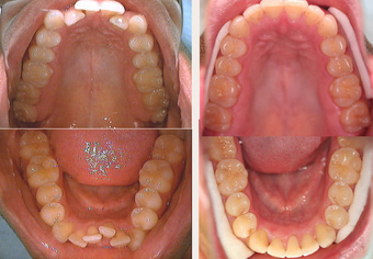 Invisalign before 145503
