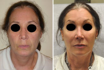 Facial Rejuvenation with Filler before 388074
