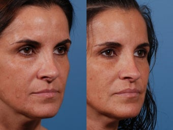 Revision rhinoplasty 435954