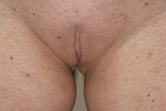 Labiaplasty after 324192