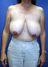 Breast Lift (mastopexy) Surgery before 122672