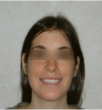 Invisalign Treatment 359168