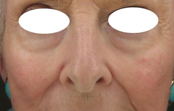 Midface, Cheeks, Tear troughs, and Nasolabial folds treated Restylane and Radiesse before 52828