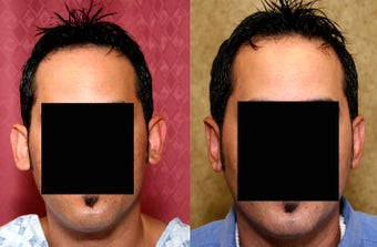 Otoplasty or ear push back surgery after 583653