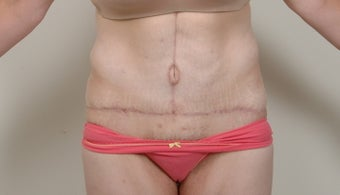 Abdominoplasty after 491030