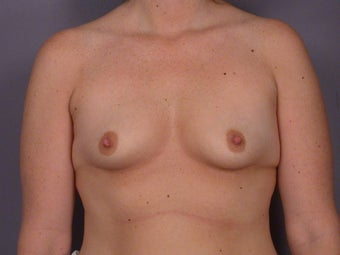 Breast Lift / Breast Augmentation    before 290987