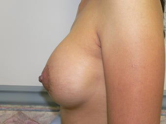 Breast augmentation with donut mastopexy 387885