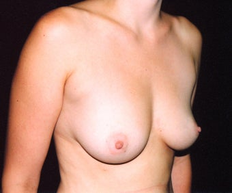 Breast augmentation 474762