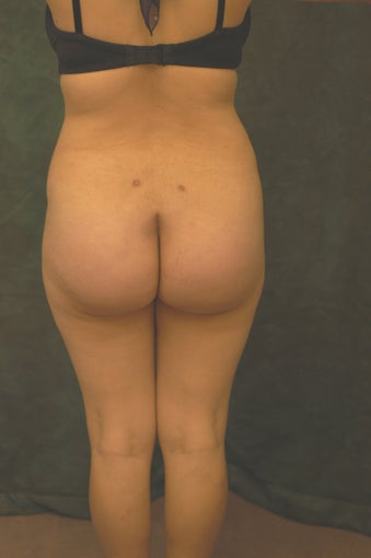 Women's Buttocks Augmentation   518152