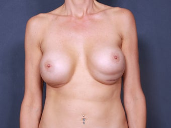 Breast Implant Revision before 461496