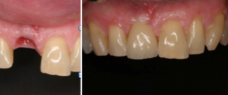 Dental Implant before 255698
