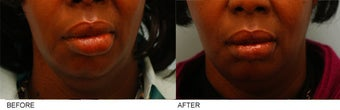 African-American Lip Reduction before 153118