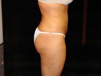 Liposuction of Abdomen, Waist, Flanks, and Inner/Outer Thighs after 203476