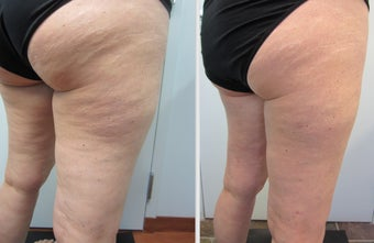 Cellulaze Laser Cellulite Reduction before 596657