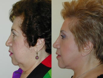 Composite Facelift, Upper and Lower Blepharoplasty after 142436
