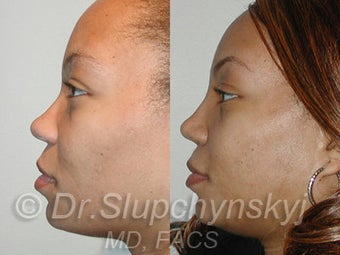 African American Rhinoplasty after 525580