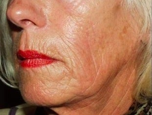 Sculptra Treatment after 370550