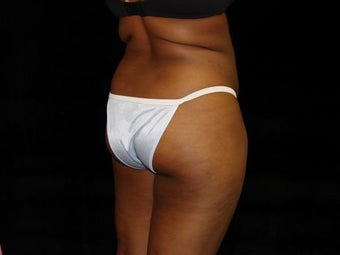 Buttocks Augmentation before 222569