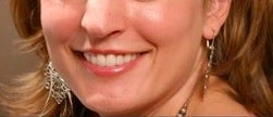 Botox for a gummy smile after 371663
