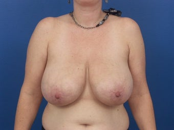Breast Reduction before 453956