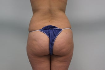 Butt augmentation before 459635