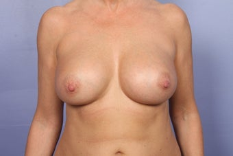 Breast Augmentation after 467329