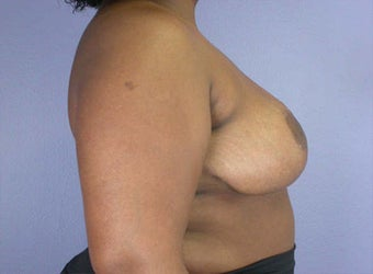 Breast Reduction after 285333