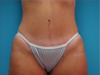 Abdominoplasty (Tummy tuck) after 64683