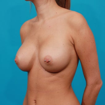 Breast Augmentation: 325 cc Silicone Gel Implants after 134612