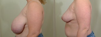 Breast Reduction after 119381