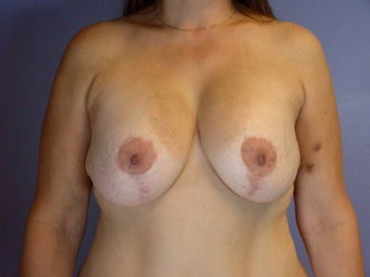 Breast lift and Implants after 306360