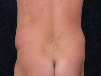 Liposuction to the waist and hips. 396363
