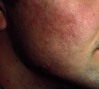 Acne Scarring after 157588
