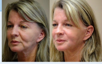Liquid Facelift with Female before 350087