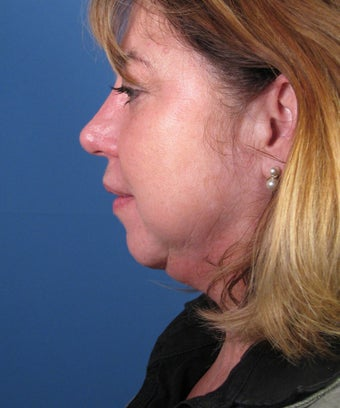 Chin Implant before 550579