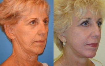 Image Lift, Full Face Laser after 351059