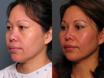 Nose Surgery after 338486