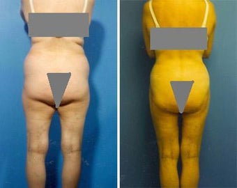 Liposuction before 636108