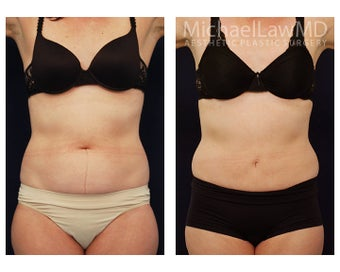 Liposuction before 495522