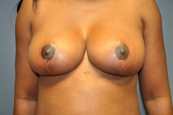 Breast Lift after 515274