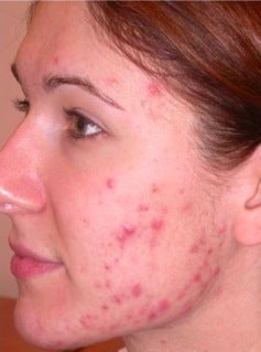 PDT for acne before 376114
