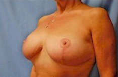 Breast Reduction after 256288