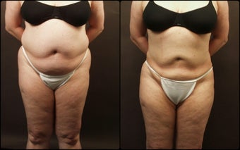 Liposuction  before 170451