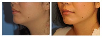 Chin Liposuction before 640671