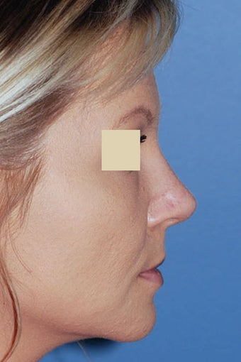 Revision Rhinoplasty after 88144