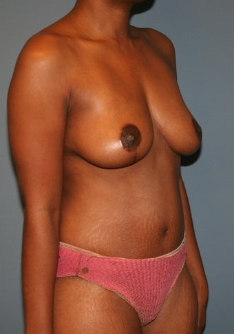 Breast lift and tummy tuck 530972